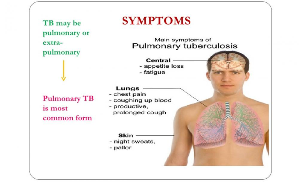 an analysis of the existence of tuberculosis its causes and treatment The development of tb disease is a two stage process in the first stage, known as latent tb, a person is infected with tb bacteriain the second stage, known as active tb or tb disease, the bacteria have reproduced sufficiently to usually cause the person to have become sicksome tests are for latent tb, others are for active tb, and some are for both.