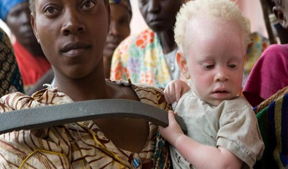 Albinism: UN official welcomes latest developments in 'landmark' Malawi murder case