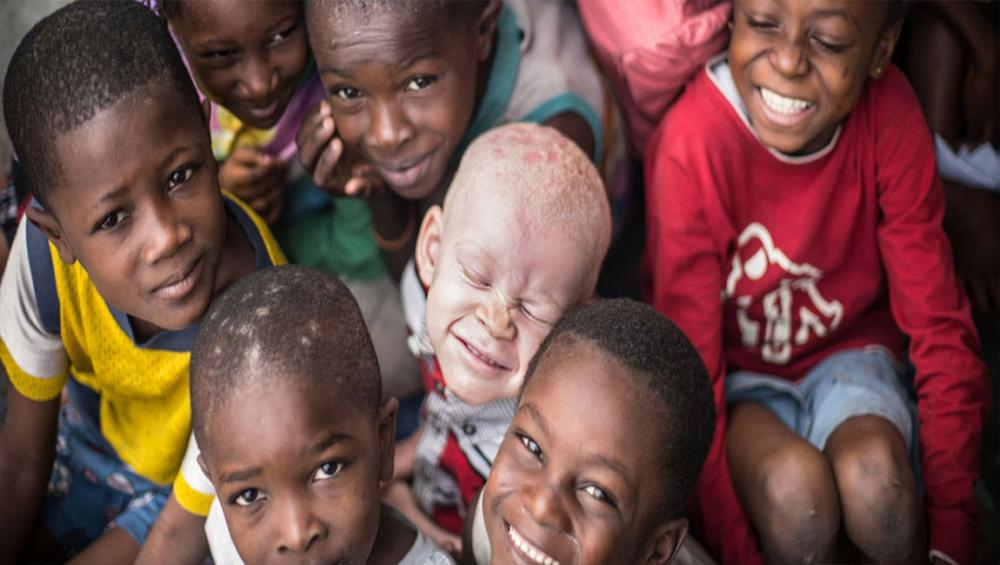 Recognize, celebrate and 'stand in solidarity' with persons with albinism