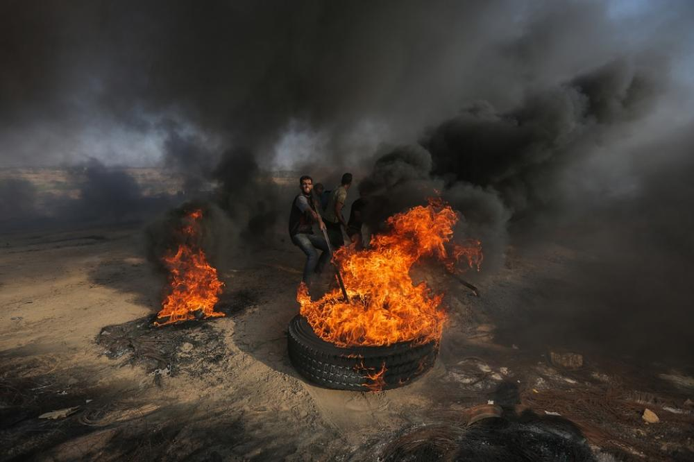 Number of Palestinians wounded in Gaza border violence exceeds 77 people: Heath Ministry
