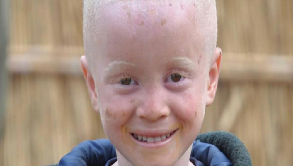 Kenya makes progress in supporting people with albinism, but 'much remains to be done' says UN expert