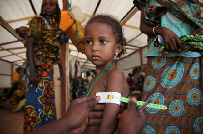 CAR: UN concerned over children suffering from malnutrition