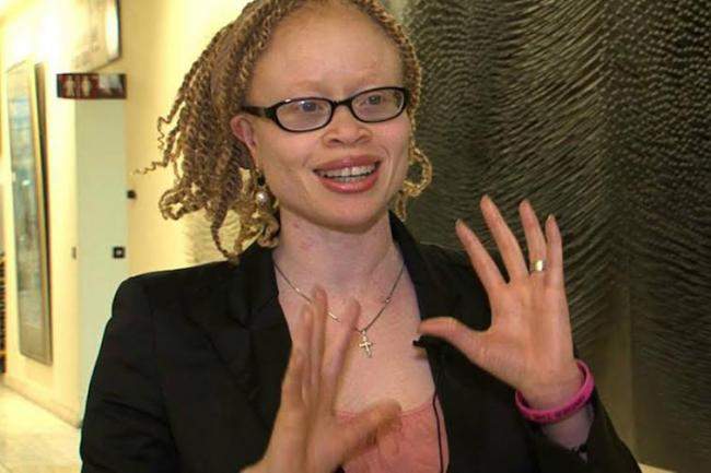 In Malawi, people with albinism face 'total extinction'– UN rights expert