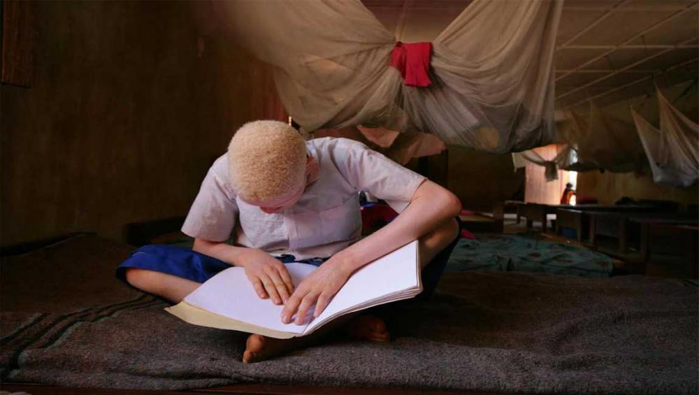 Joint African action crucial to protect persons with albinism from violence, highlights UN expert