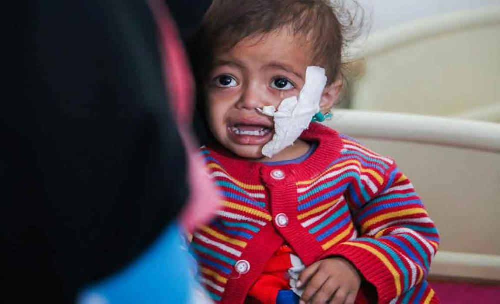 Children paying the heaviest price as conflict in Yemen enters third year - UN