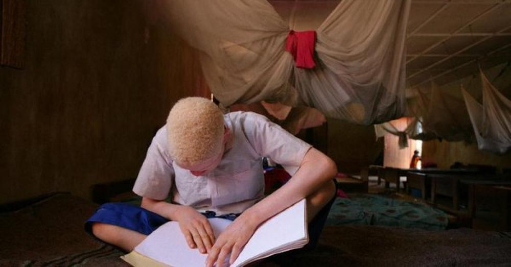 'Much more' can be done to raise awareness about the plight of persons with albinism: UN chief